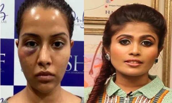 நடிகை ரைஸா பணம் கேட்டு மிரட்டுவதாக மருத்துவர் புகார்..!
